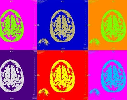 A montage of 6 paintings of brain scans on multi-coloured backgrounds
